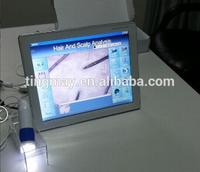 12 inches touch screen hair analysis software hair analyzer